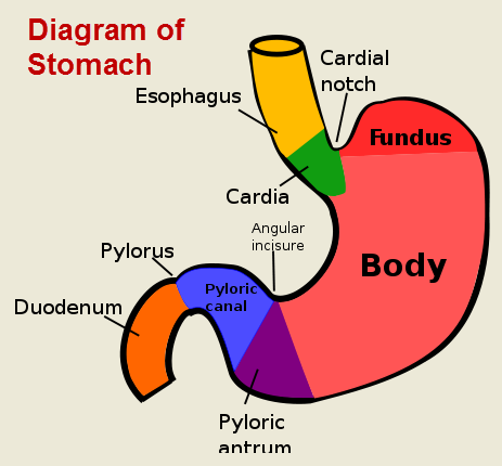 for severe gastric ulcers involving the duodenum, the pylorus, the lower  portion of the stomach, may be removed along with the all or part of the  duodenum,