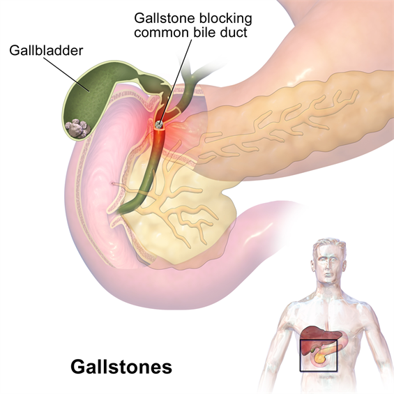 Surgical Oncology Program Gallstones