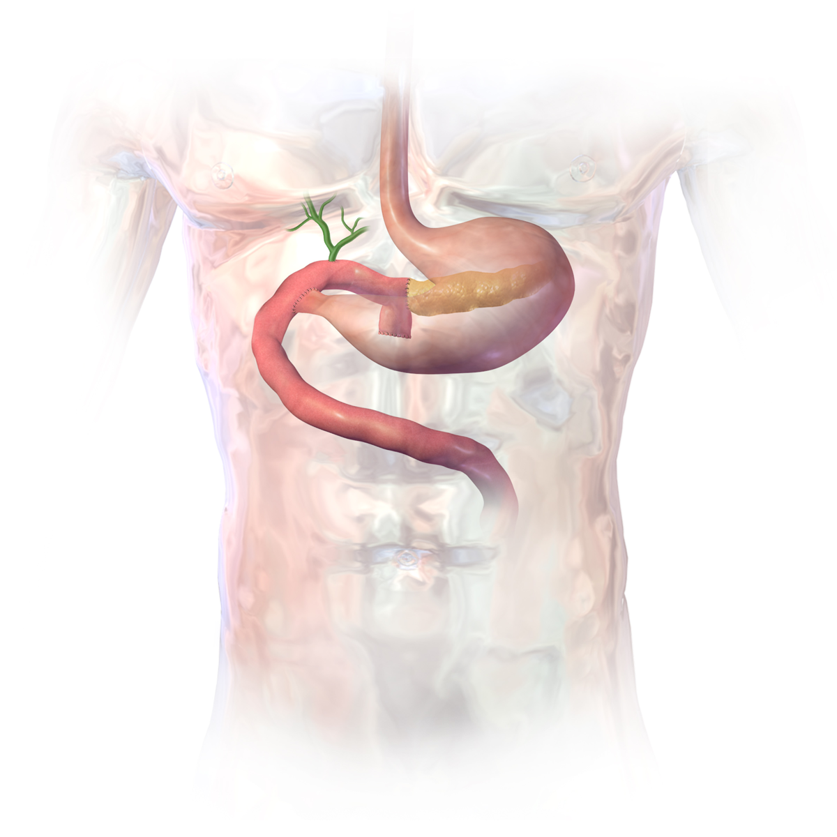 Surgical Oncology Program - Pancreatic Cysts